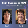 Skin Surgery & FSM Cover (3)